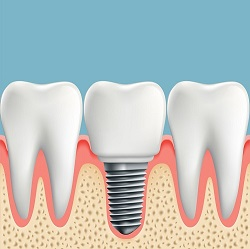 tooth vector.jpg