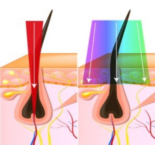 Laser reaches root- IPL does not reach root -