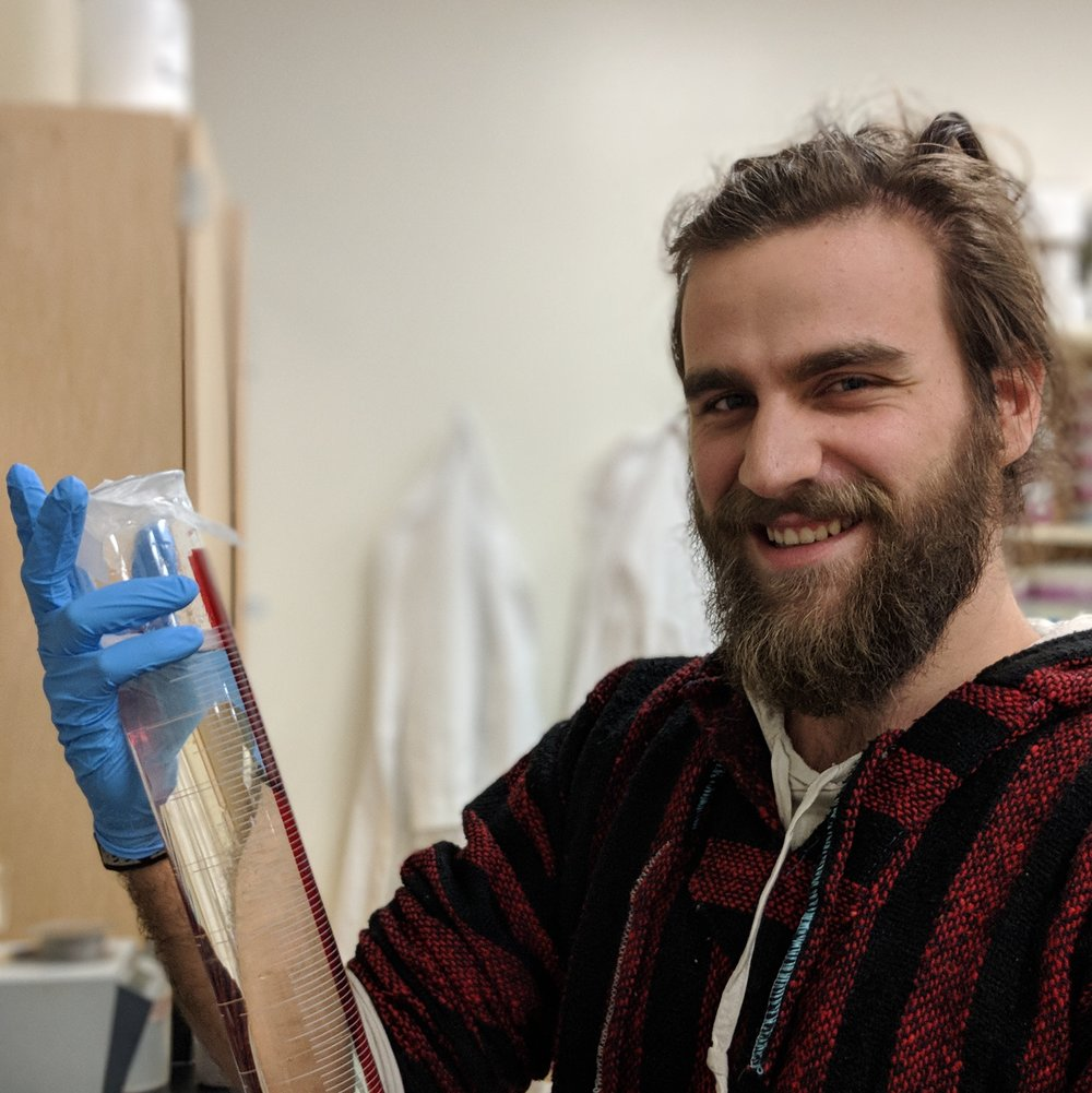 Lorenzo Carré  Former International Masters Student from France who worked on SSV infectivity quantification.