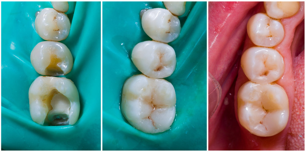 before and after images of a dental filling