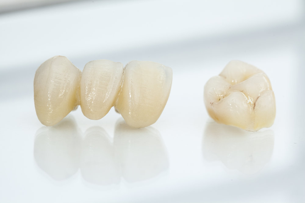 ceramic dental bridge