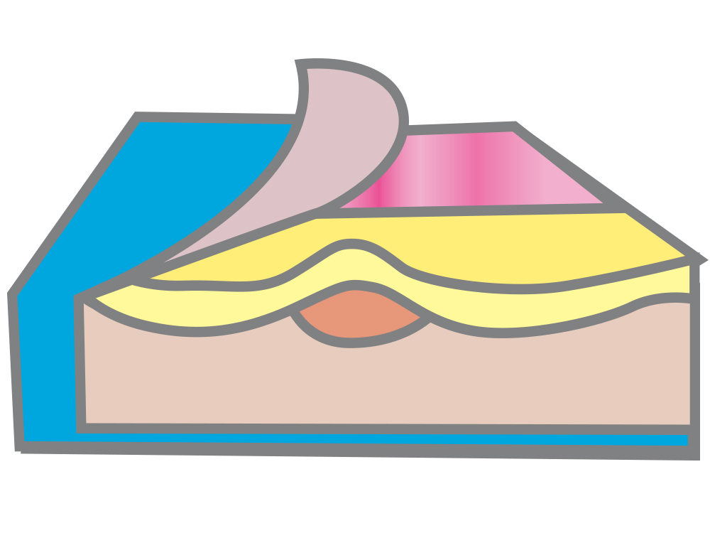 Profile soft gel