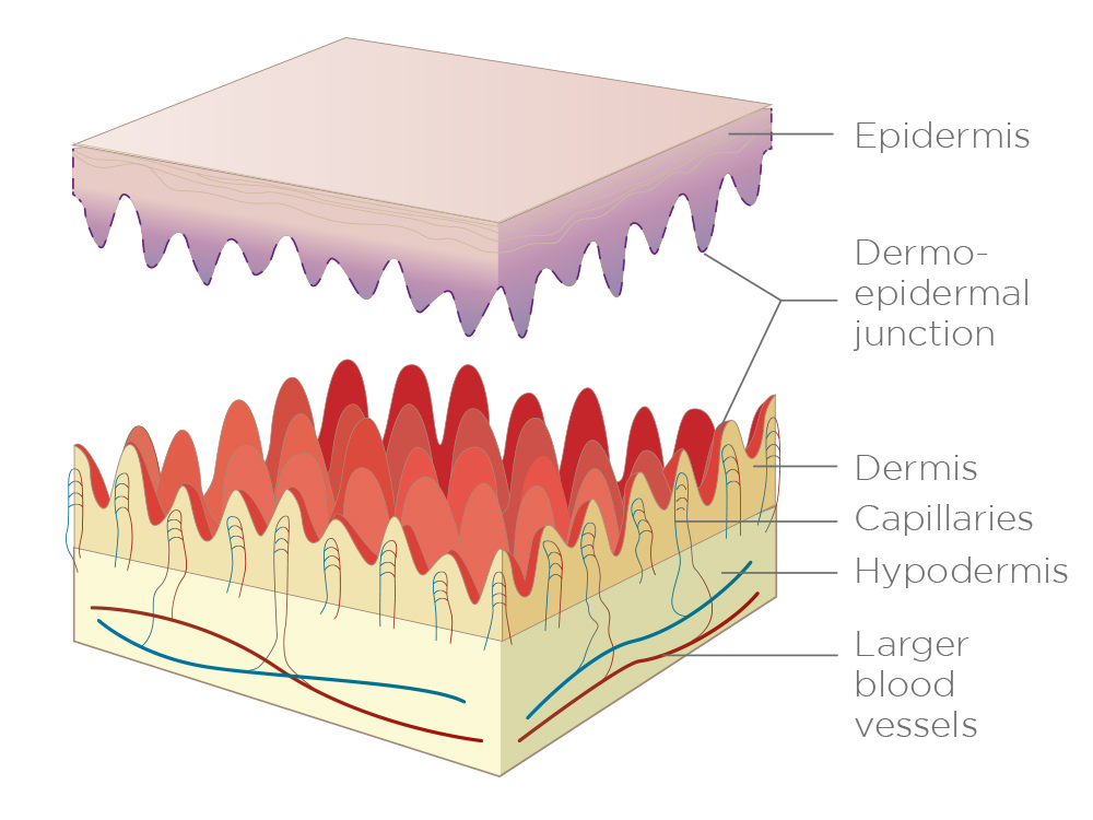 Figure 11.  Due to friction or trauma, these two parts can be pulled apart – causing blisters or exposure of the dermis.