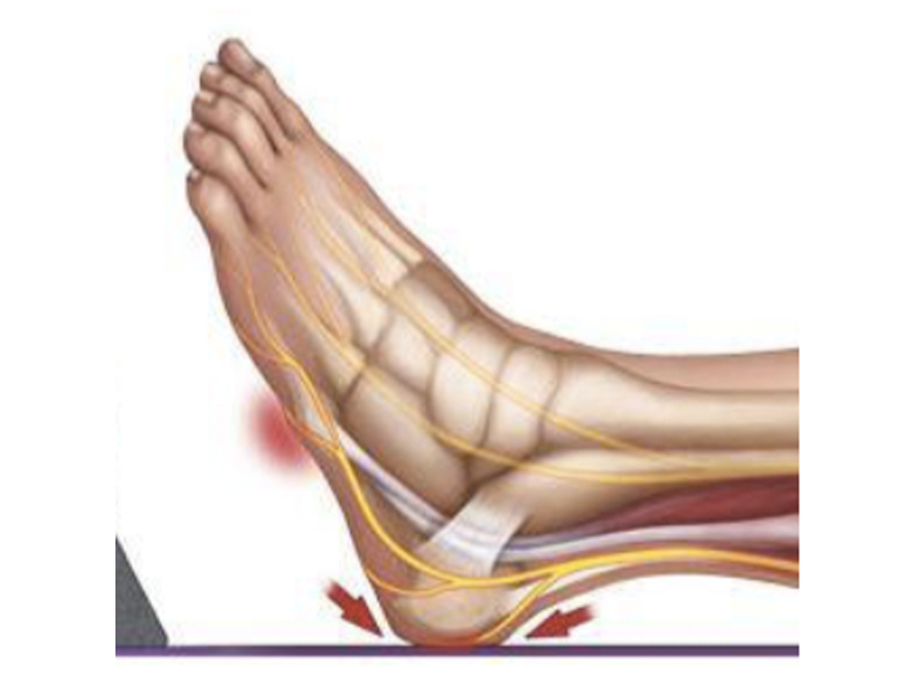 The real risk to deep tissue injury on heels1.jpg