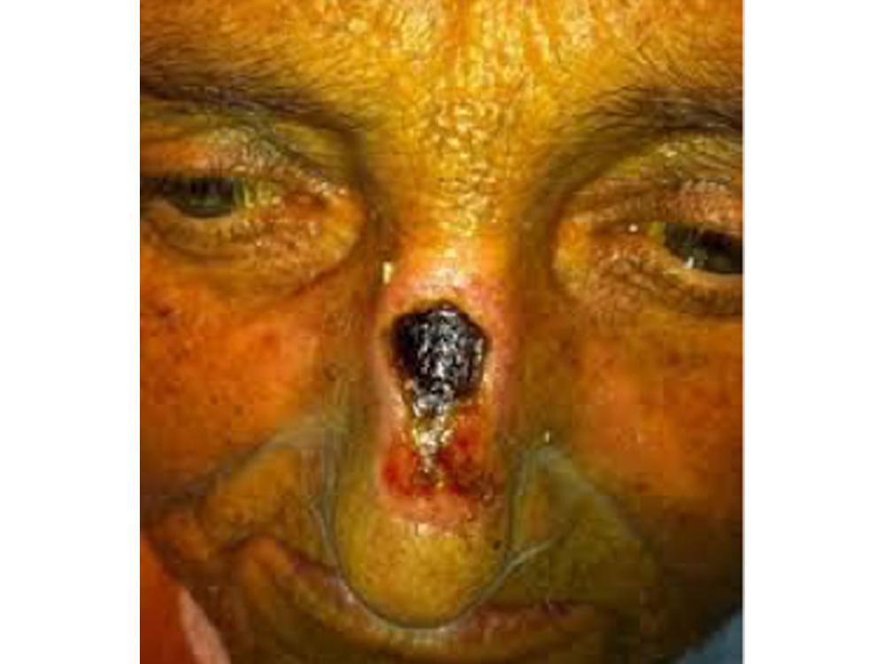 facial pressure ulcer.jpg