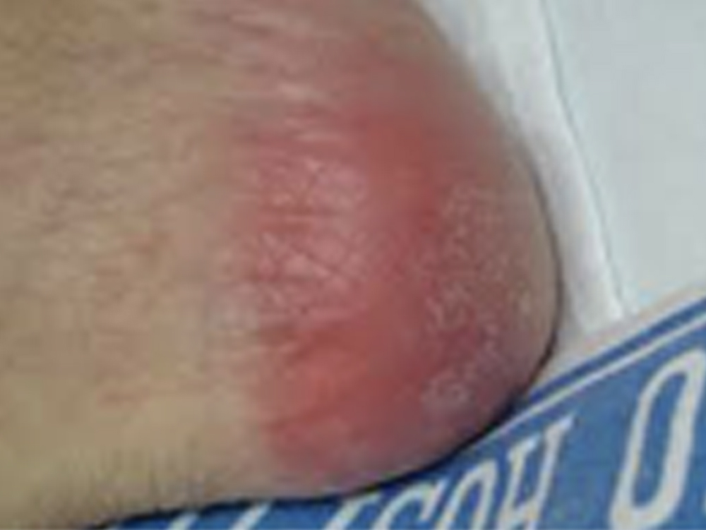 Category 1 Pressure Ulcer