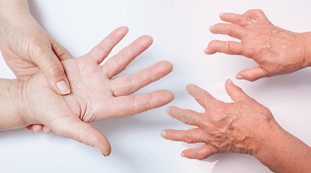 Rheumatoid-Arthritis-and-Cancer-Connection.jpg