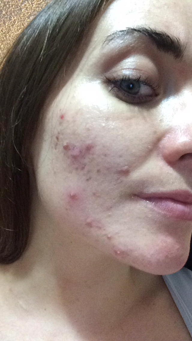 My skin a year ago, this is with make up on. I don't have a make up free photo of my acne.