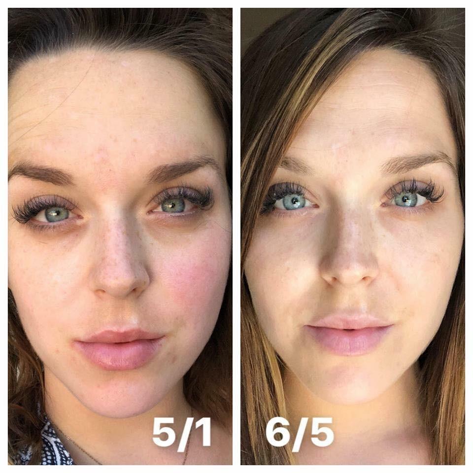 Brightening Multi Vitamin Treatment