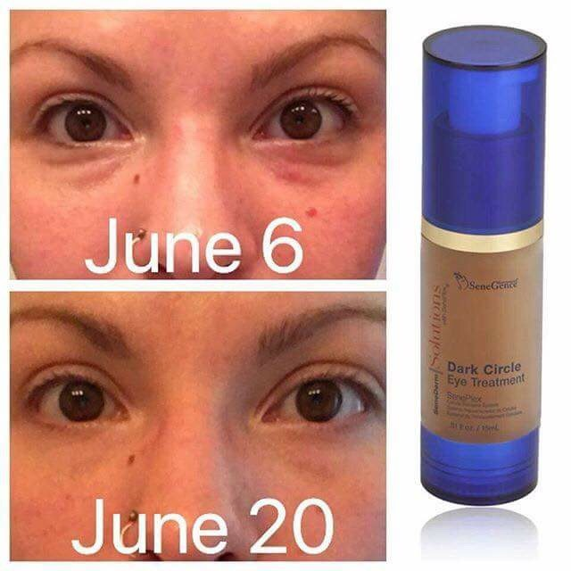 SeneDerm Solutions Dark Circle Eye Treatment Before and After