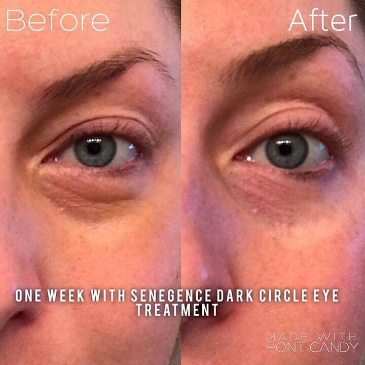 SeneDerm Solutions Dark Circle Eye Treatment Before and Afters