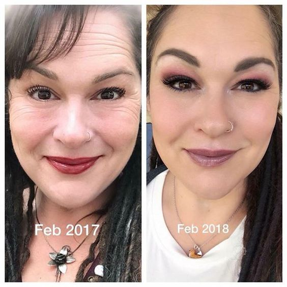 SeneGence Anti-Wrinkle Before and Afters