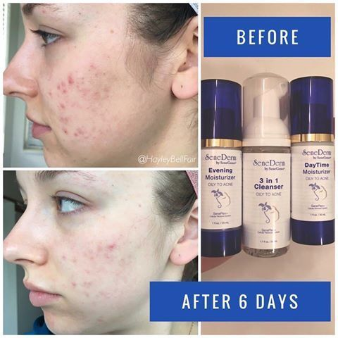 Spot-On Acne Treatment Before and After