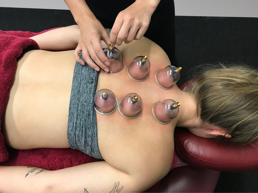 Cupping Therapy 2.jpg