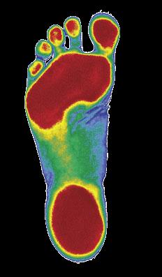 Flat Feet Thomastown