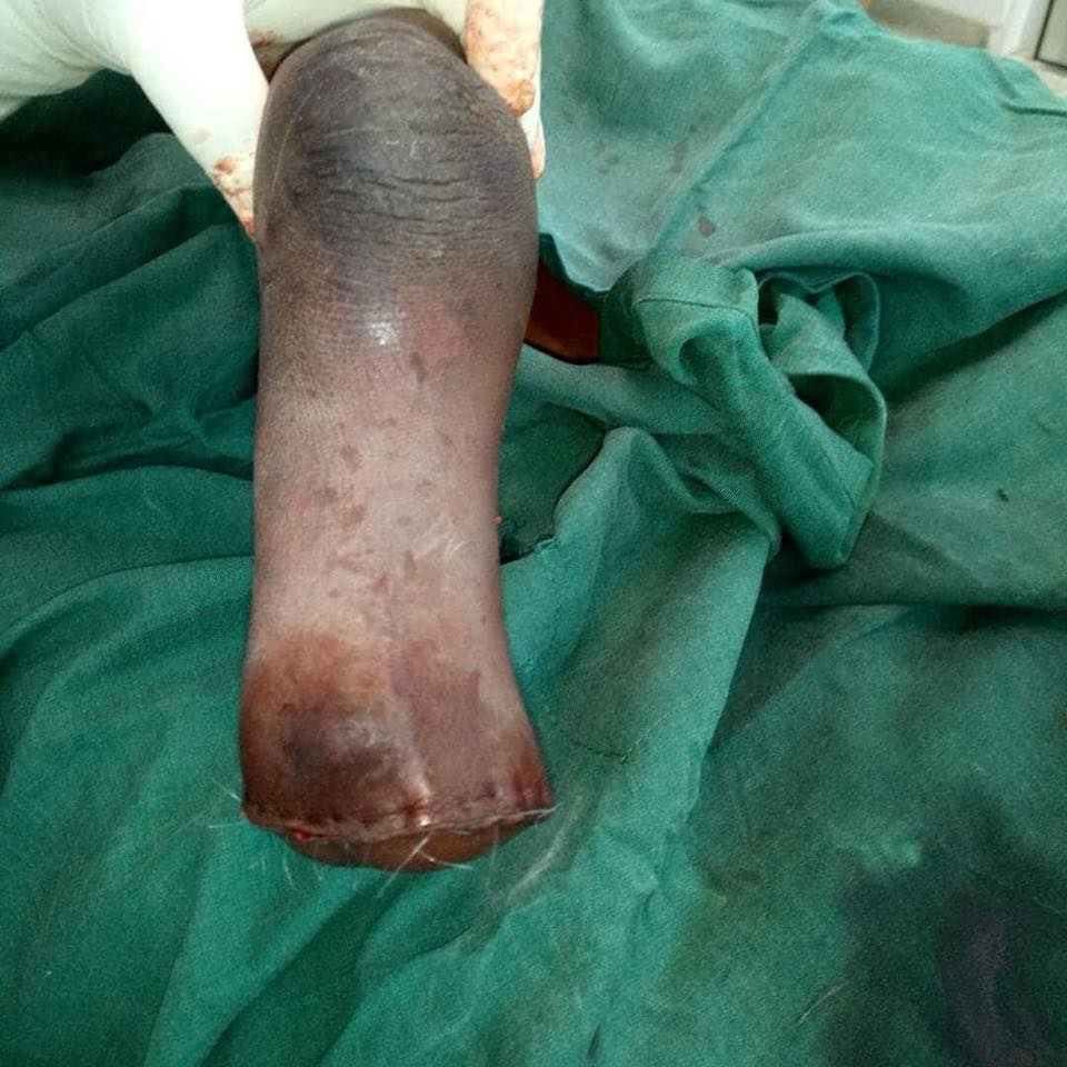 Iffat's leg post procedure