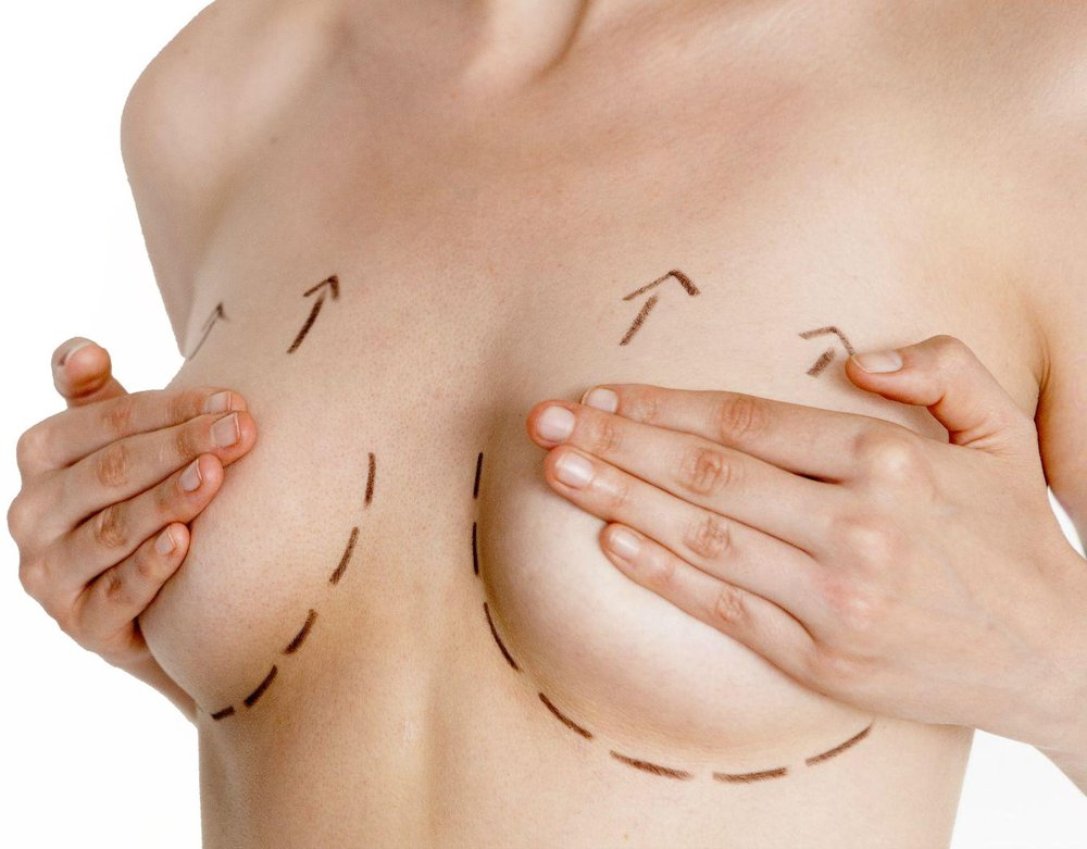 breast-lift1134567.jpg