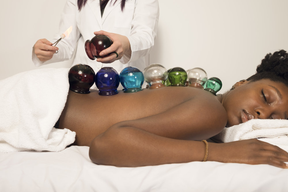 Emily-Grace-Acupuncture-Cupping.jpg