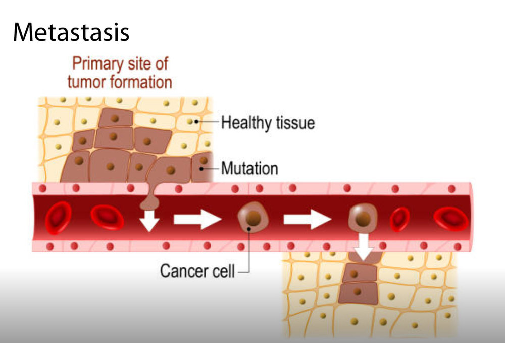 New insight into why cancer spreads to the liver - Mar 2019 New findings from the Beatty Lab show how the liver is altered during cancer and inflammation to support cancer cell spread (metastasis) to the liver. The research team found that IL-6 programs hepatocytes, the chief functional cells of the liver, to establish a niche environment that is supportive of cancer metastasis. Their findings were published in Nature.