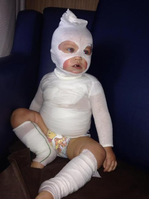 * Photo credit: http://www.bamboobubby.com.au/blog/wet-wrapping-to-help-eczema-in-7-easy-steps/