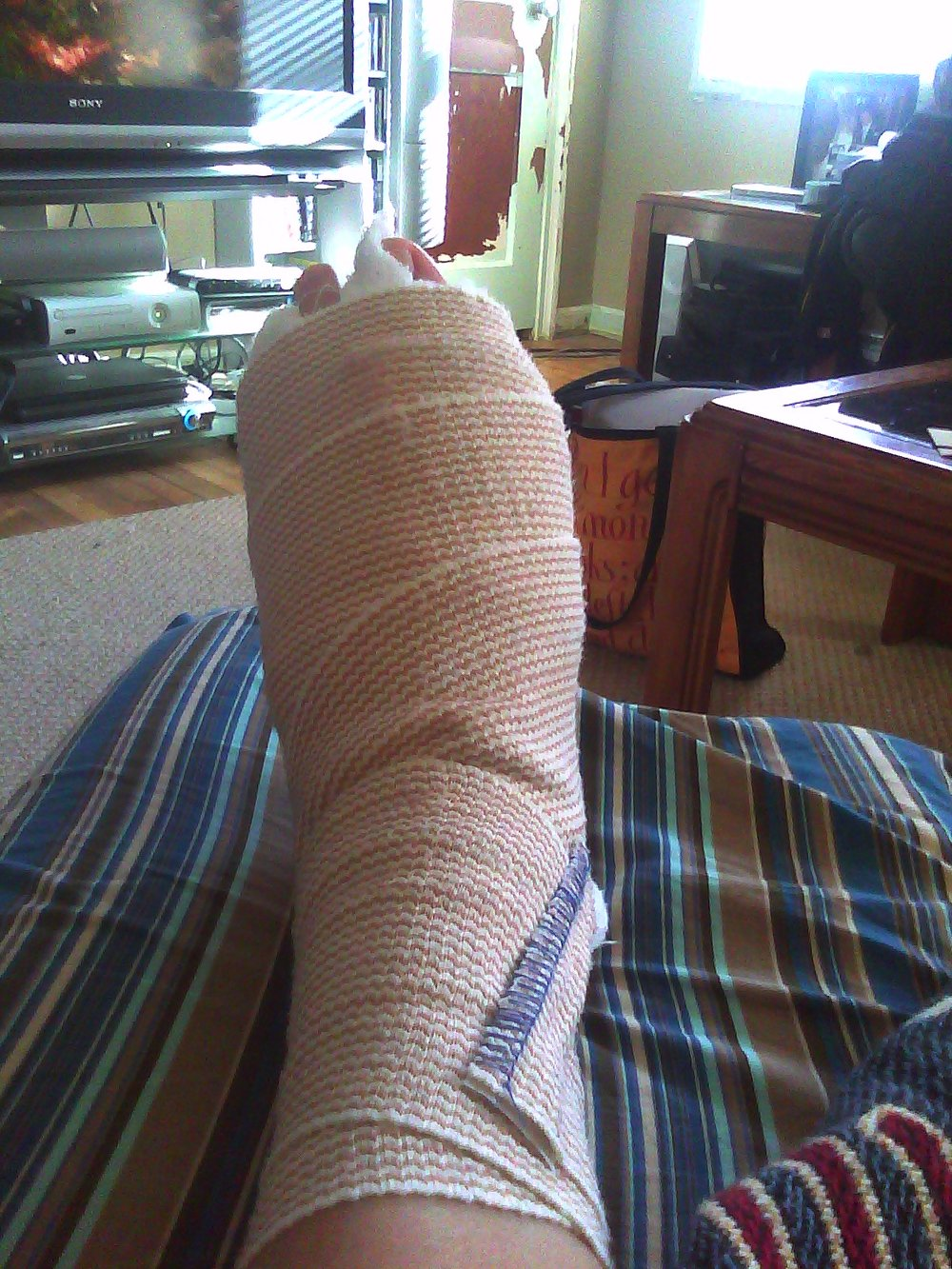 The post surgery foot