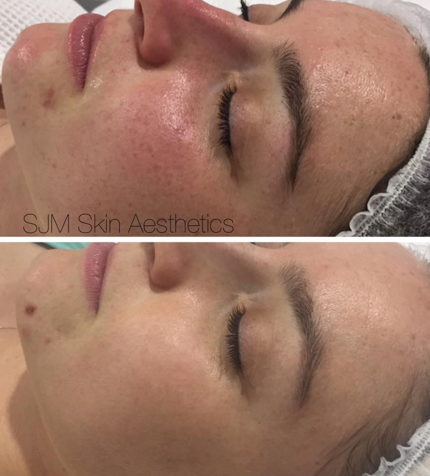 Before & After - ''Thank you Suzanne, I just wanted to let you know how good my skin is feeling/looking a couple of weeks after my first treatment with you. My spots have all cleared up and my skin overall feels so much smoother. I had my tonsils and adenoids out on Thursday so am currently recovering from that and it's so nice to not have to worry about what my skins looking like at the moment. Can't wait to treat myself and come see you again once I'm all healed.''K.Davies