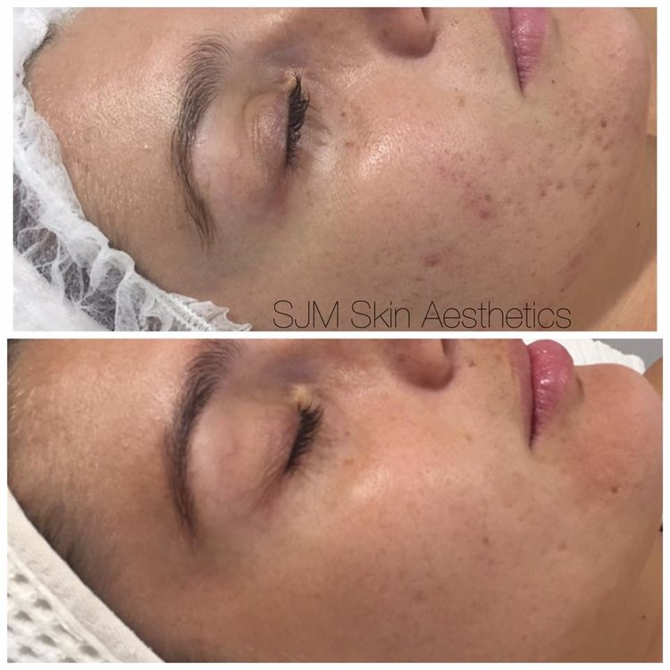 Treatments: 4x Enzyme Peel + LED add on, 1x full face IPL, 6x CIT Needling.  Homecare: Total Cleansing Cream, Custom Blend High Classic Moisturiser, SPF 30 +.