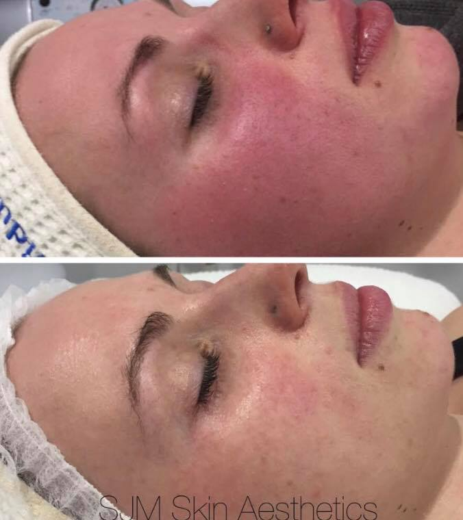 Treatments:4x Nutrition Facial + LED add on, 3x full face IPL, 1x CIT Needling.  Homecare: Cleansing Milk with DMS, Lotion N, Custom Blend Serum, Oleogel R, Deco Foundation, MTS Home Roller.