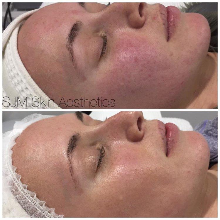 Treatments: 4x Nutrition Facial + LED, 1x full face IPL + 2x CIT Needling.  Homecare: Total Cleansing Cream, Peeling Cream, Lotion N, Custom Blend Serum, DMS Base Cream High Classic Moisturiser, SPF 30 +, MTS Home Roller.
