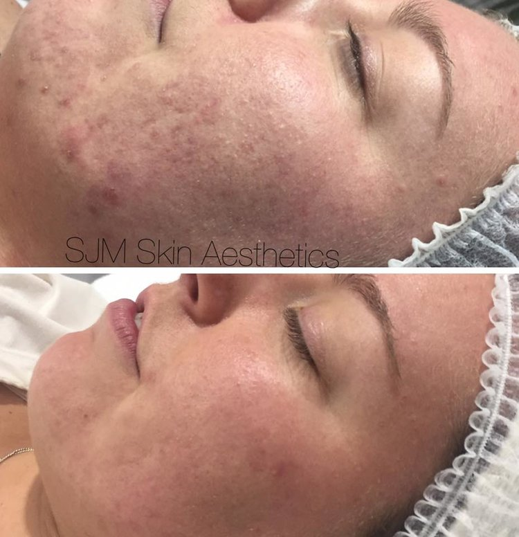 Treatments: 5x Enzyme Peel + LED add on, 7x CIT Needling + LED add on, 1x full face IPL + LED add on.   Homecare: Total Cleansing Cream, Lotion P, Custom Blend Serum, Plutioderm Plus moisturiser.