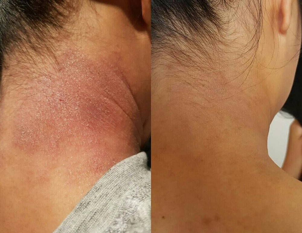 Left Image - One of our clients who came to us suffering from eczema, during the adjustment phase. Right Image - After adjustment phase.