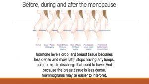 Menopause-Breast-300x169.jpg
