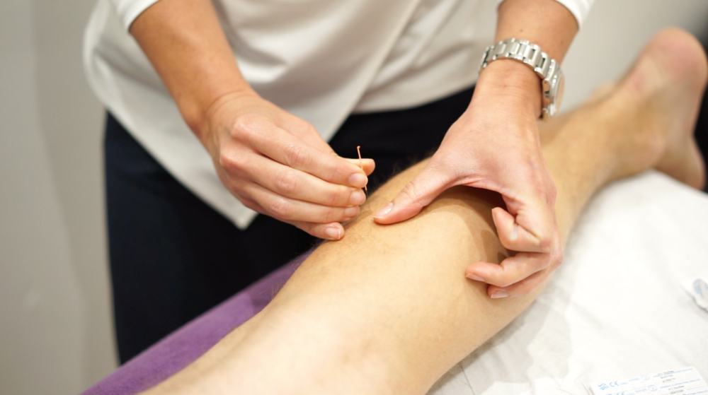 SE1physio_acupuncture