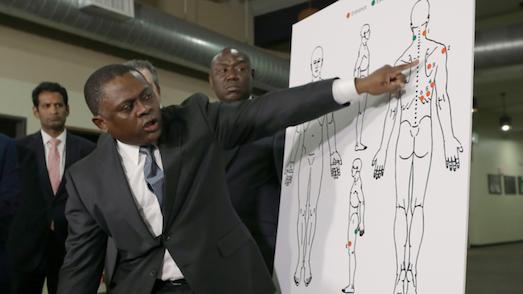 Dr. Bennet Omalu, is a famed pathologist best known for the initial discovery of NFL brain injuries. On Dec. 5, 2017, Omalu resigned from the San Joaquin County coroner's office accusing Sheriff-Coroner Steve Moore of interfering with death investigations to protect law enforcement officers. He concluded that White Sacramento Cops Shot Stephon Clark in the back 6X & waited 5 minutes before rendering aid. The county autopsy recently contradicted his findings to support the white cops' tale that Mr. Clark charged at them with a loaded cell phone. [     MORE     ]