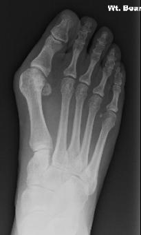 Pre-operative bunion X-Ray