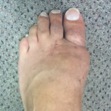bunion.gallery.6.png