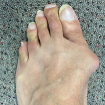 bunion.gallery.5.png