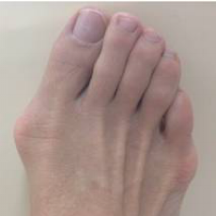 bunion.gallery.9.png
