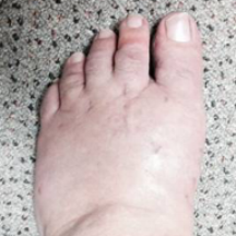 bunion.gallery.14.png