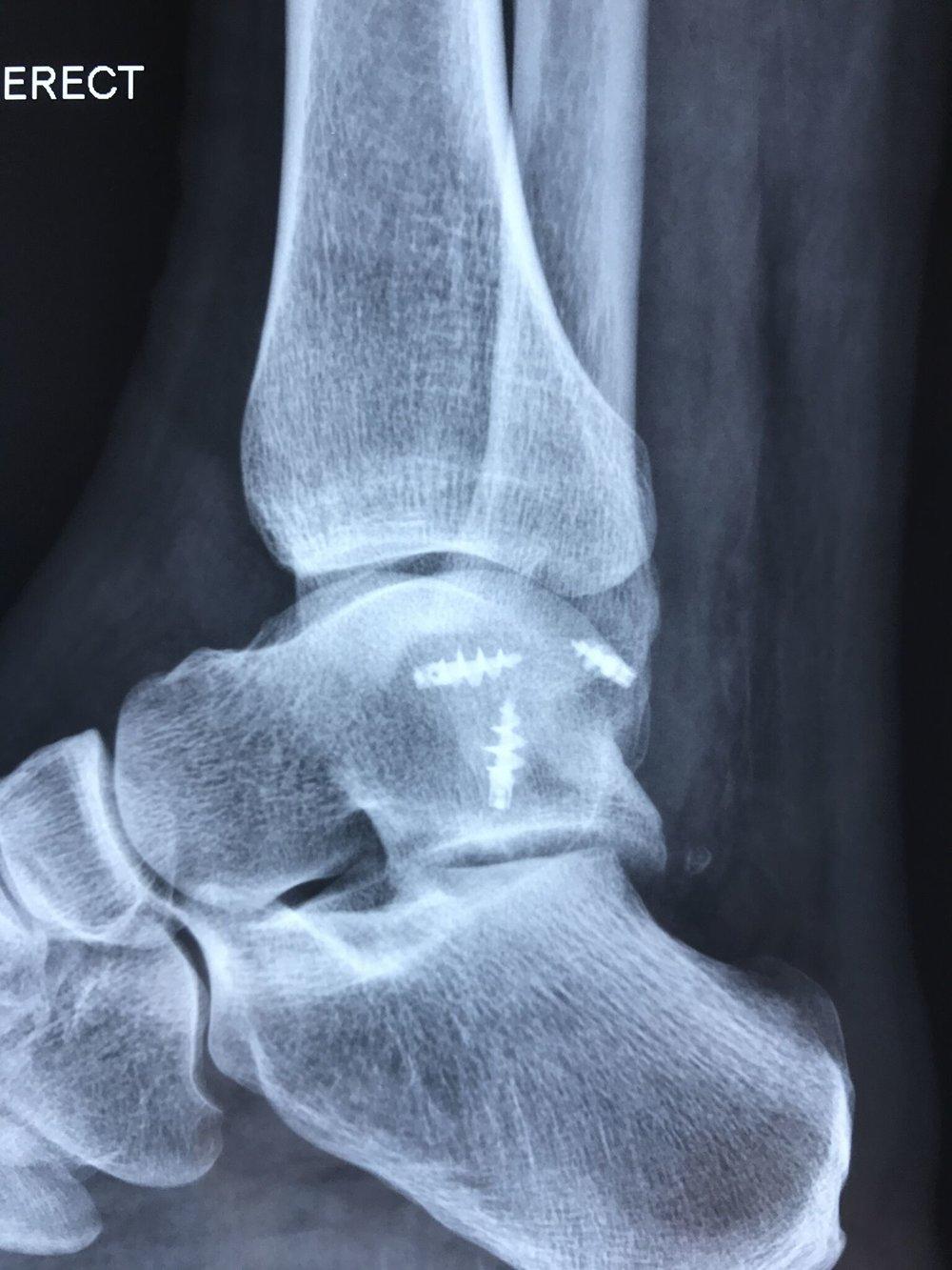Ankle stabilisation