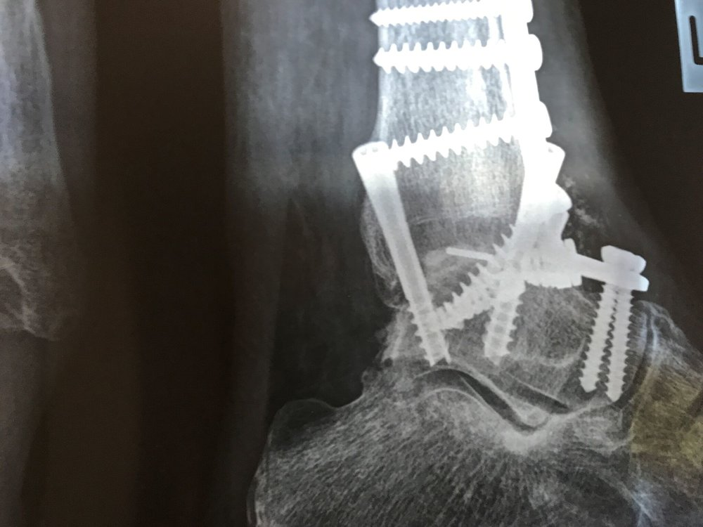 Ankle Fusion Xray after anterior plating and early rehab_preview.jpeg