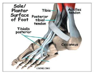 Posterior Tibial Tendon Dysfunction Dr Gordon Slater Foot