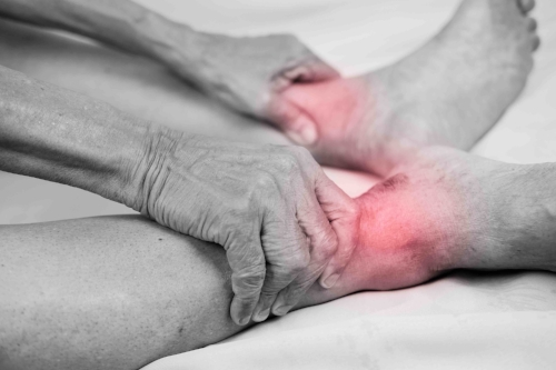 Arthritis - There are three main types of arthritis affecting the foot and ankle. Osteoarthritis, a degenerative joint disease typically affecting older people, rheumatoid arthritis, an auto-immune disease and post-traumatic arthritis.