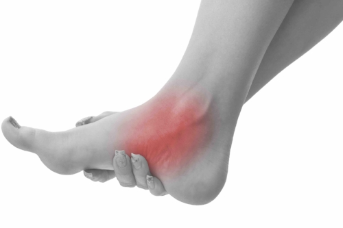 Fallen Arches - Fallen arches or flat feet (medically known an pes planus) may be present from birth, but are more commonly a degenerative condition affecting the ligaments and cartilage that support the arch of the foot.