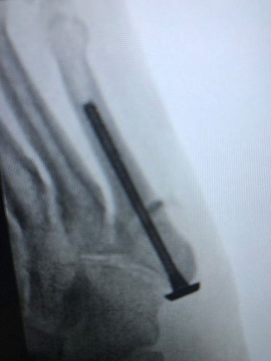 Jones Fracture – treated with Minimally Invasive Surgery and Synthetic bone  Surgeon: Dr Gordon Slater