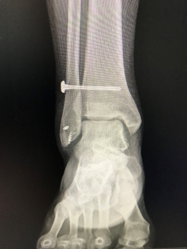 Post-surgical radiograph of torn ligament case treated with minimally invasive surgical technique, day case.  Surgeon: Dr Gordon Slater