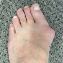 Bunion 1 Before