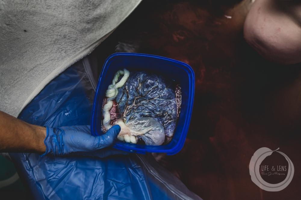 sydney birth photographer - placenta from newborn baby
