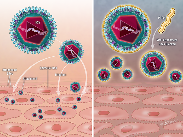 Image of a herpes virus (left) with light blue attachment sites; PPCM attaches to these sites (right) blocking viral attachment and fusion, thus preventing infection.