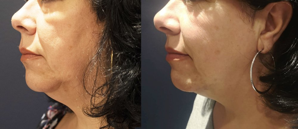 Before & After Morpheus8 Treatments in 3 months